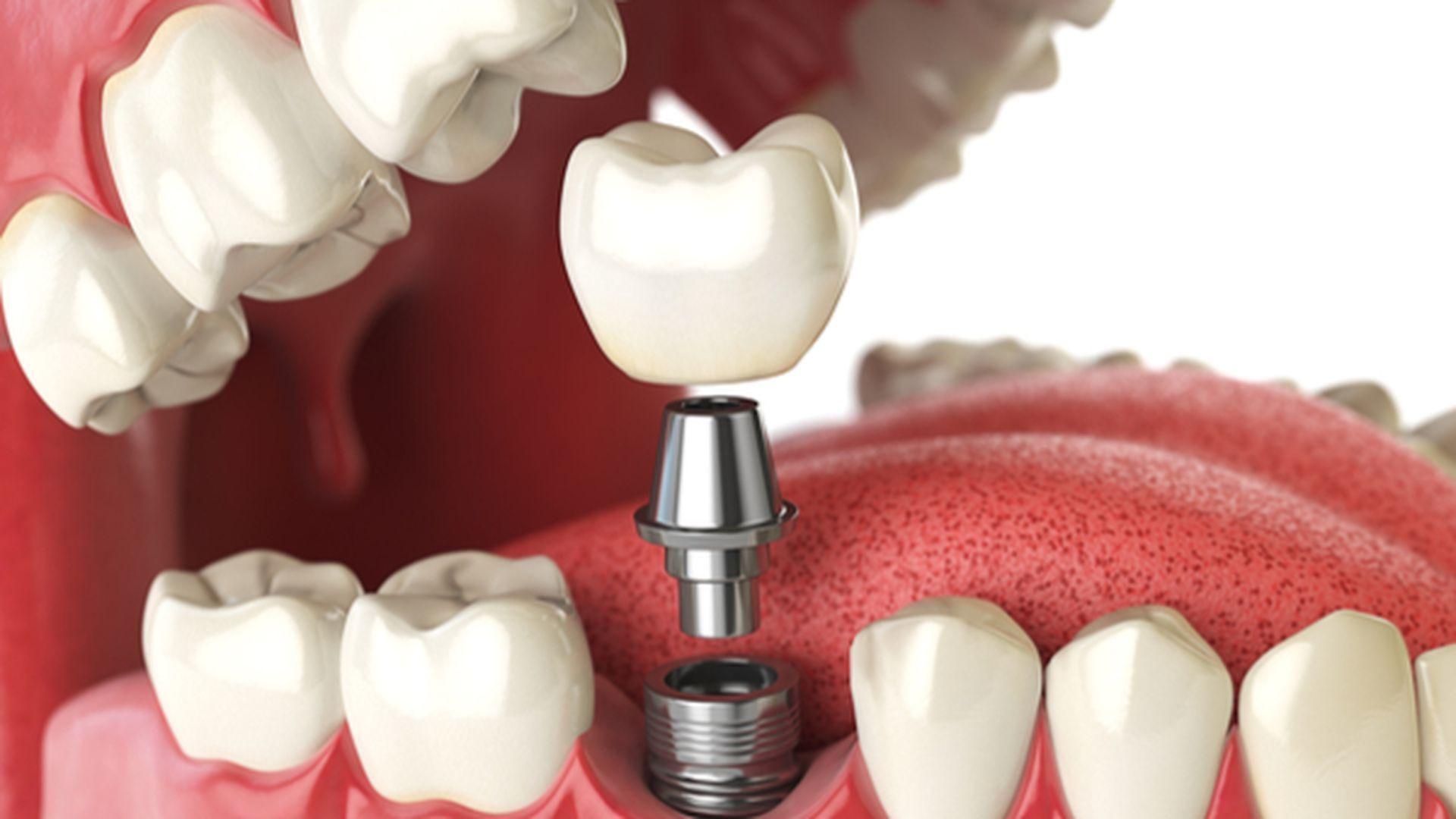 dental-implants-in-Erb-St-Erbsville-Dental-Waterloo-Dentist-1